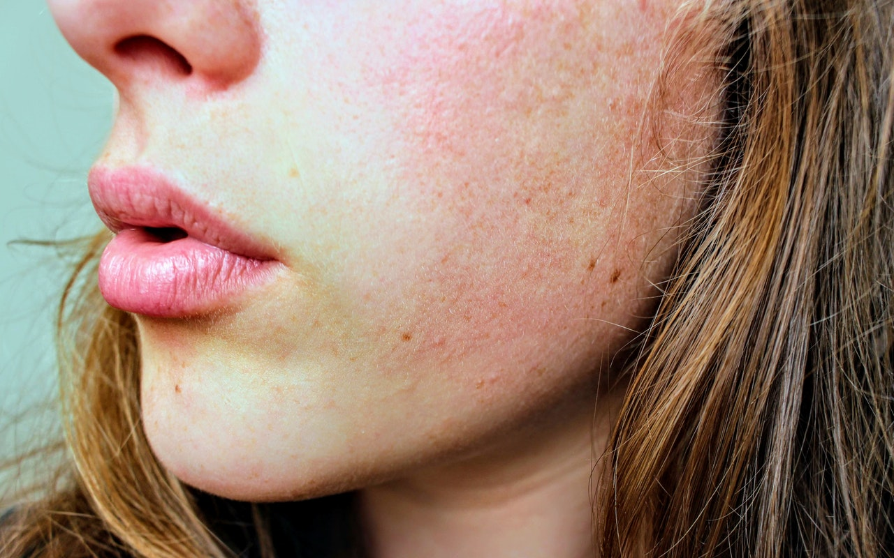 Hyaluronsyre – en naturlig ingrediens i kroppen din